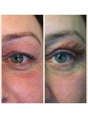 Non-Surgical Eye Lift - Plexr - Rosmedics