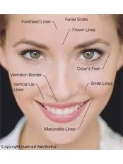 Non-Surgical Facelift - Semi-Permanent Makeup Cardiff
