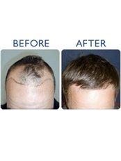 Hair Loss Treatment - Cardiff Cosmetic Clinic