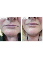 Lip Augmentation - Cardiff Cosmetic Clinic