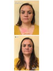 Thread Lift whole face - Ageless Clinic Cardiff