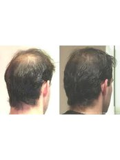 Hair Loss Treatment - Cardiff Cosmetic Clinic