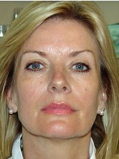 Mrs Carron Kitchen - Health Care Assistant at Stratford Dermatherapy Clinic - Body Image