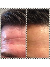 Treatment for Wrinkles - The Grove Skin & Laser Clinic