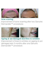 Stretch Marks Removal - The Grove Skin & Laser Clinic