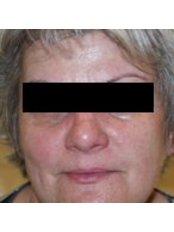 Rosacea Treatment - The Grove Skin & Laser Clinic
