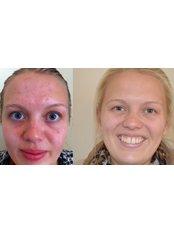 Acne Treatment - The Sugar Box Clinic