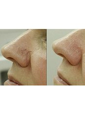 Laser Nose Thread Vein Removal - Compleet Aesthetics Body and Face Clinic