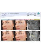 VISIA™ Skin Analysis - Compleet Aesthetics Body and Face Clinic