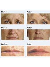 Restylane™ / Perlane™ Filler - Skin-Quest Clinics