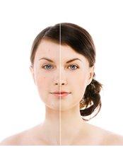 Rosacea Treatment - Skin-Quest Clinics