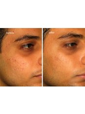 Scar Removal - Skin-Quest Clinics