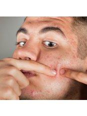 Acne Treatment - Skin-Quest Clinics
