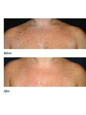 Medical Aesthetics Specialist Consultation - Skin-Quest Clinics