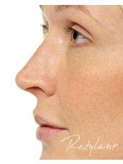 Non-Surgical Facelift - Skin-Quest Clinics