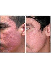Acne Scars Treatment - BeauSynergy