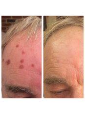 Age Spots Removal - BeauSynergy