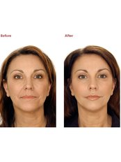 Dermal Fillers - Hemel Cosmetic Clinic