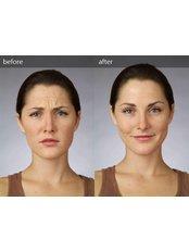 Treatment for Wrinkles - Hemel Cosmetic Clinic