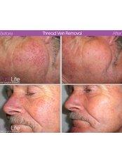 Laser and Pulsed Light Vein Treatment - PureLite Non Surgical Aesthetics