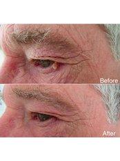 Skin Tag Removal - PureLite Non Surgical Aesthetics