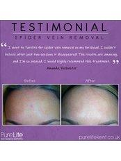 Spider Veins Treatment - PureLite Non Surgical Aesthetics