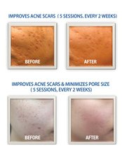 Acne Scars Treatment - Skin Body Beauty