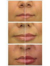 Lip Augmentation - Skin Body Beauty