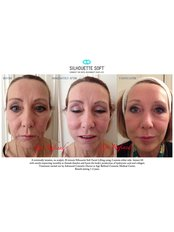 Silhouette Lift™ - Age Refined Medical Cosmetic Centre