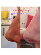Non-Surgical Nose Job - Age Refined Medical Cosmetic Centre