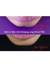 Chin Augmentation - Age Refined Medical Cosmetic Centre
