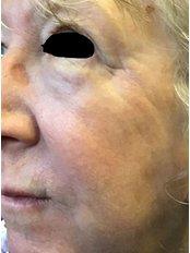 Laser Skin Resurfacing - The Women's Clinic