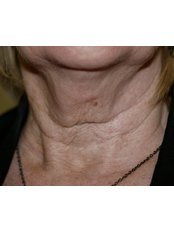 Laser Wrinkle Reduction - The Women's Clinic