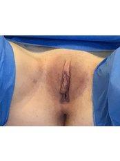 Labiaplasty - The Women's Clinic