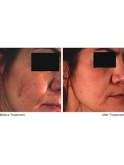Pigmentation Treatment - Dr Hala Elgmati (Clinic13 Glasgow)