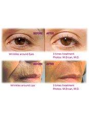 Skin Micro-Needling  - Dr Hala Elgmati (Clinic13 Glasgow)