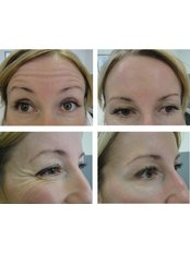 Treatment for Lines and Wrinkles - Essence Medical