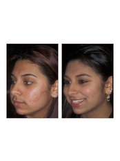 Course of four treatments - Essence Medical