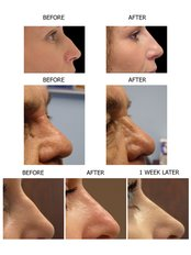 Non-Surgical Nose Job and Reshaping with advanced filler technique - Essence Medical