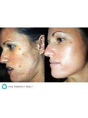 Acne Facial - Dr Hala Elgmati (Clinic13 Glasgow)