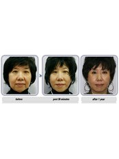 Non-Surgical Facelift - Essence Medical