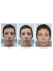 Dermal Fillers - Essence Medical