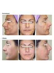 Chemical Peel - Essence Medical