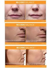 Facial Fillers 1ml - Strathearn Clinics - Glasgow