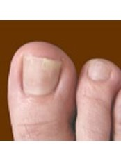 Finger Nail Fungus Treatment from - Strathearn Clinics - Glasgow