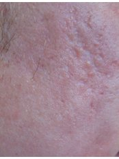 Scar Removal - The Women's Clinic