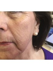 Fractional CO2 Laser Treatment face antiagening, acne scar removal, pigmentation correction - The Women's Clinic