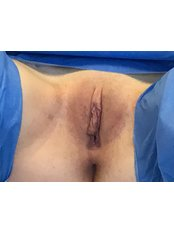 Labiaplasty & Hoodectomy - The Women's Clinic