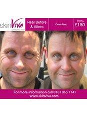 Treatment for Wrinkles - SkinViva Ashton-under-lyne