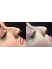 Non-surgical rhinoplasty at Julie Pawson Aesthetics - Julie Pawson Aesthetics